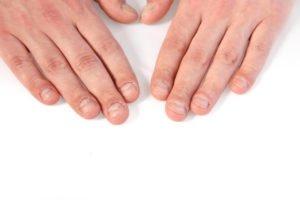 Kauen oder knibbeln an den Nägeln - Die Entwöhnung bei Feinschliff